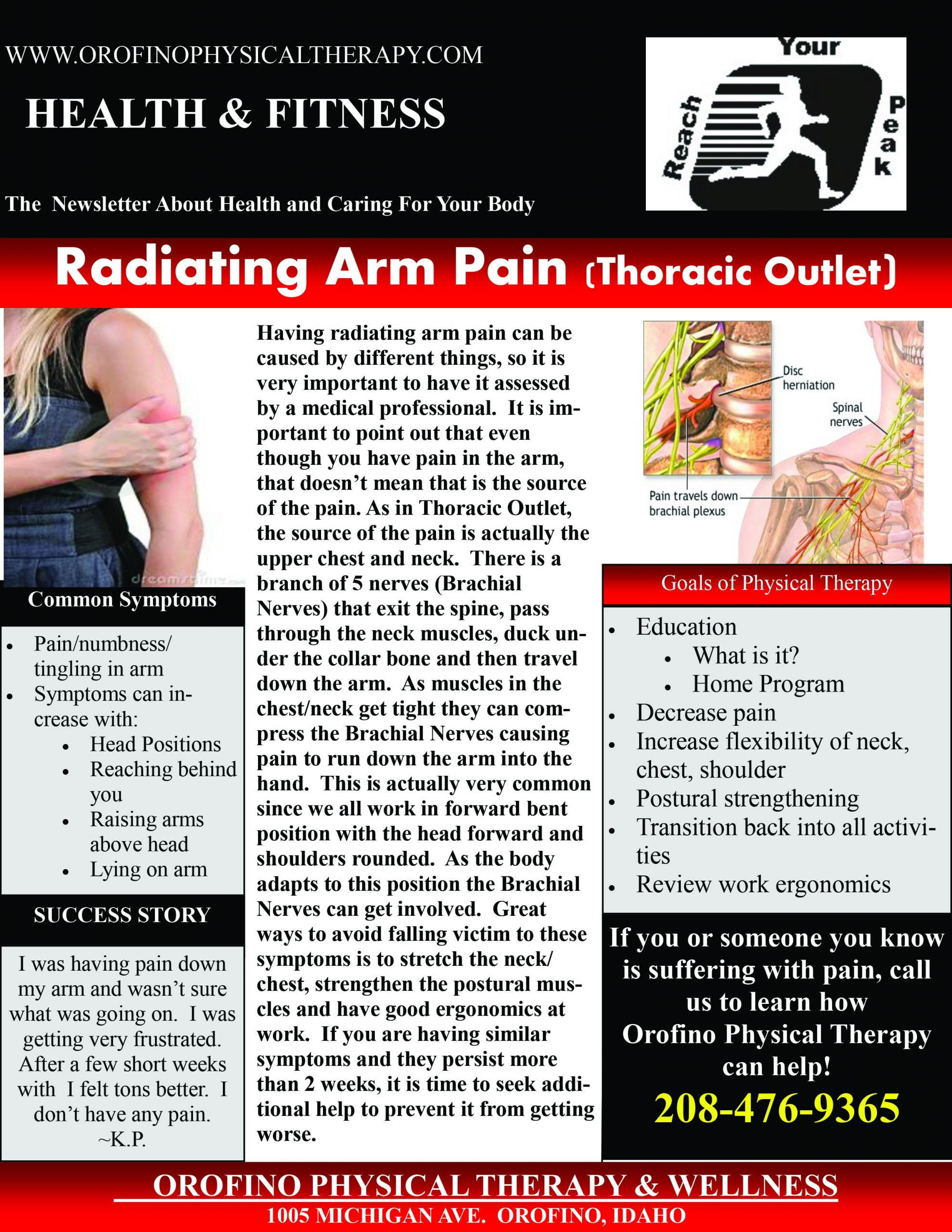 Thoracic Outlet Radiating Arm Pain