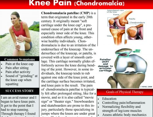 Chondromalacia – Knee Pain